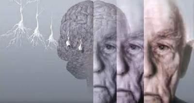 Ученые подтвердили связь между низким весом и ранними проявлениями деменции