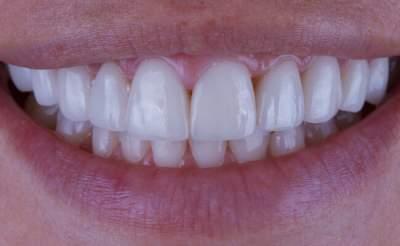 Названы продукты, укрепляющие зубы