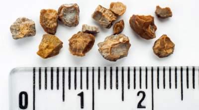 Как предотвратить образование камней в почках