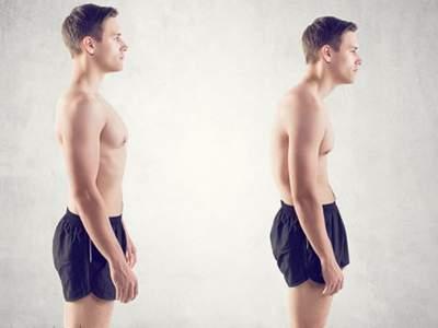 Медики рассказали, как плохая осанка влияет половое здоровье