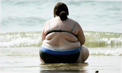 Медики рассказали, в каких случаях ожирение может спасти жизнь