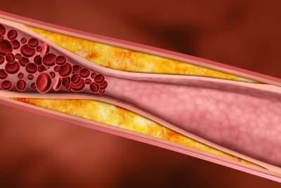 Развенчаны популярные мифы о холестерине