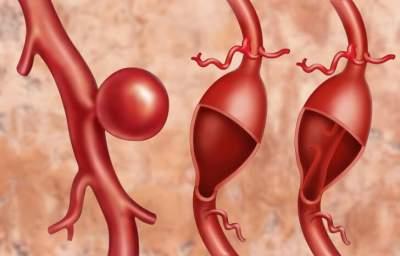 Названы характерные симптомы аневризмы сердца