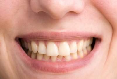 Стоматологи рассказали, что угрожает деснам