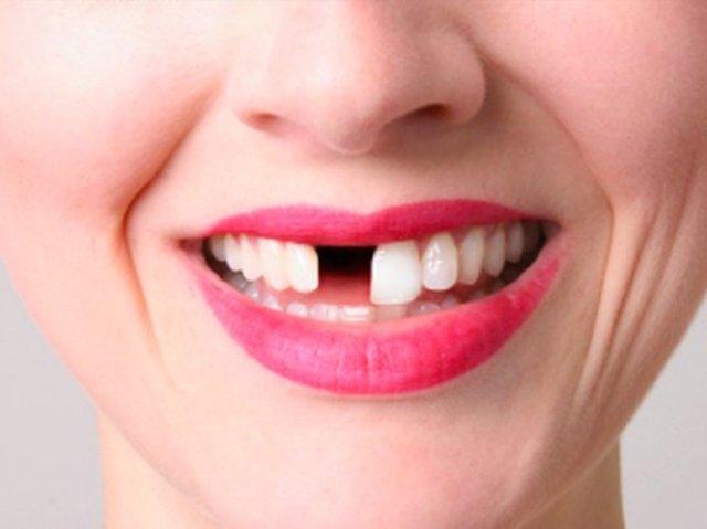 Какие продукты наносят вред зубам