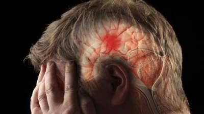 Медики напомнили, как оказать первую помочь при инсульте