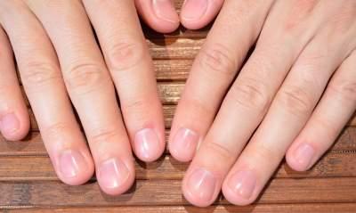 Названы 15 эффективных способов укрепления ногтей