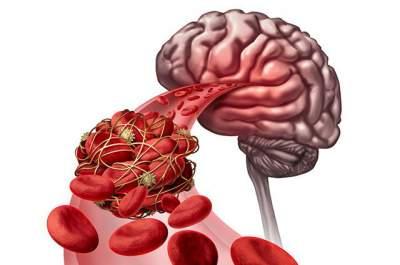 Медики назвали пищу, предотвращающую возникновение тромбов