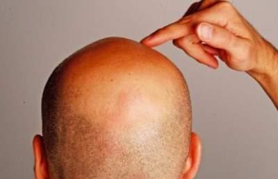 Ученые сделали невероятное открытие о волосах