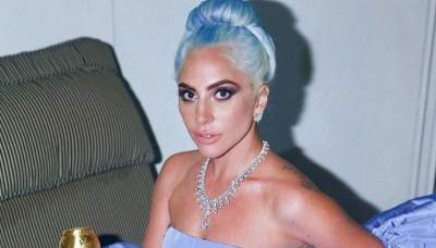 Леди Гага продолжает изменять свое тело