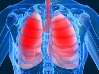 Онколог объяснил, как распознать рак легких на ранней стадии
